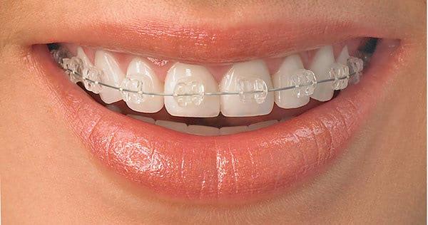 Niềng răng có đau không và 4 cách giảm đau khi niềng răng