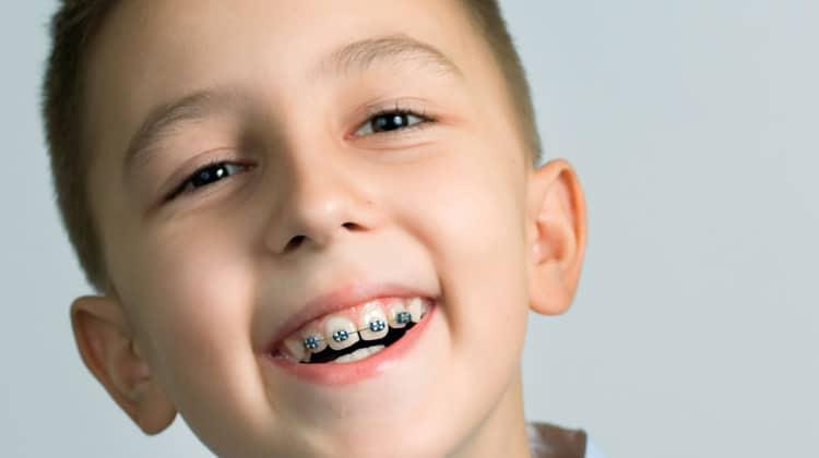 Niềng răng cho trẻ giá bao nhiêu? Phương pháp niềng răng tiết kiệm và hiệu quả nhất